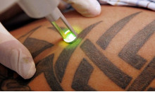 How to Remove a Tattoos